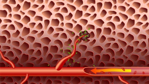 Anti-Angiogenesis Cancer Treatment Animation